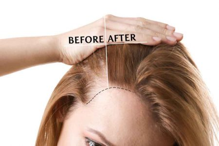 91470600 - woman before and after hair loss treatment on white background